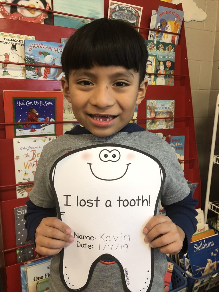 I Lost a Tooth Photo prop from Pencils to Pigtails TPT resource